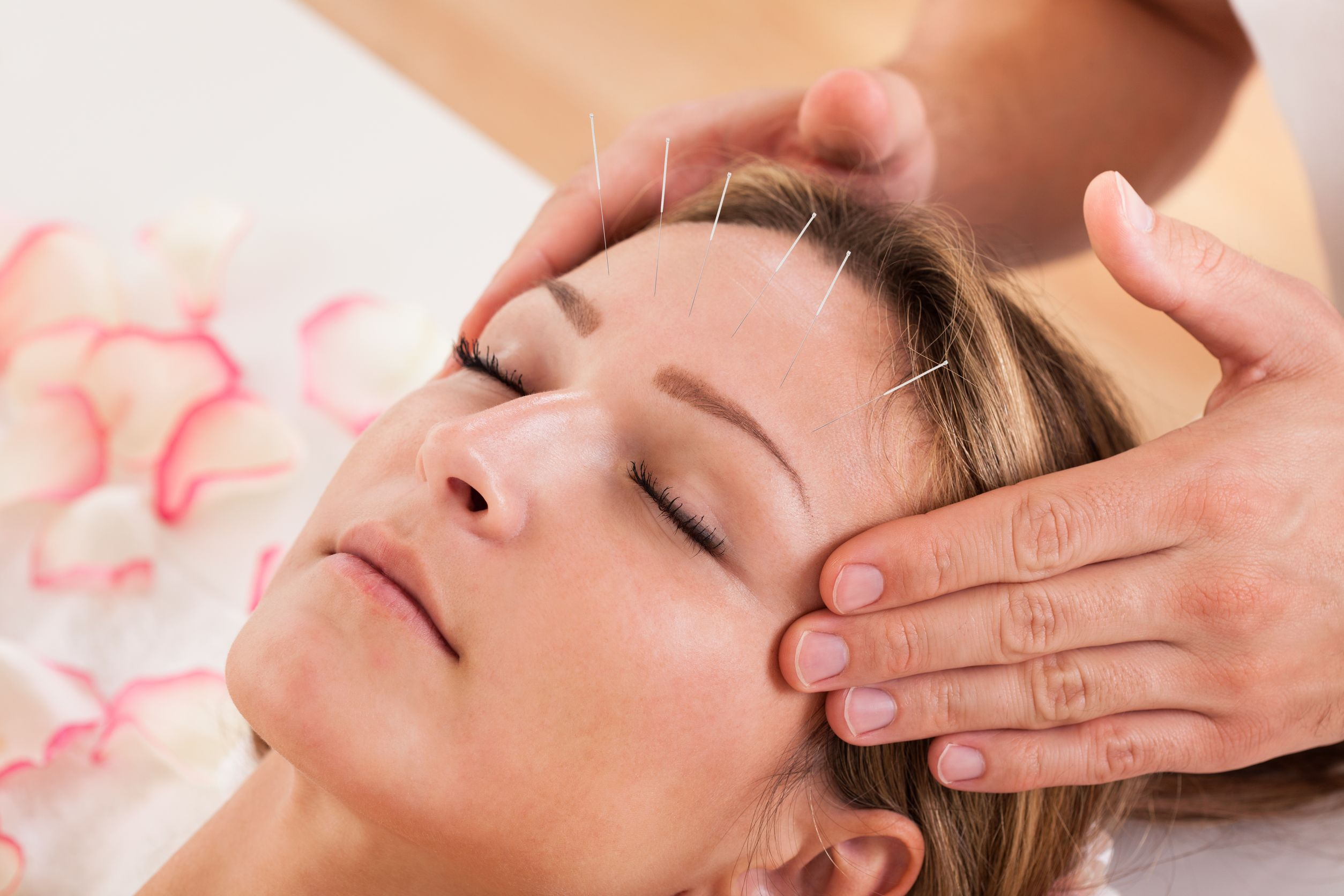 acupuncture treatments for infertility