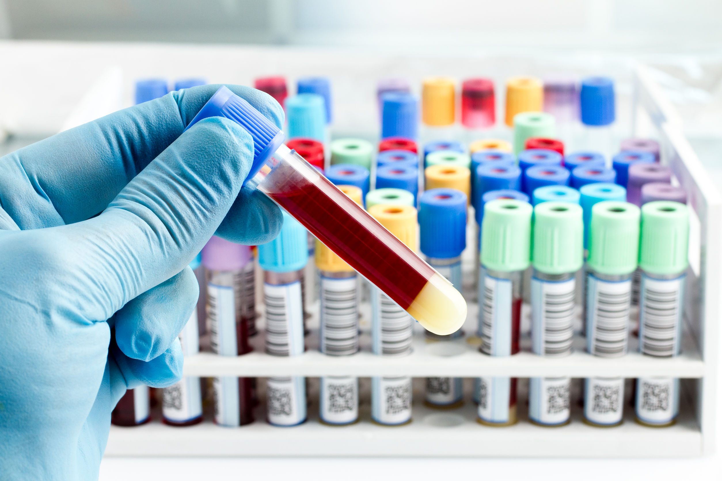 fertility blood tests